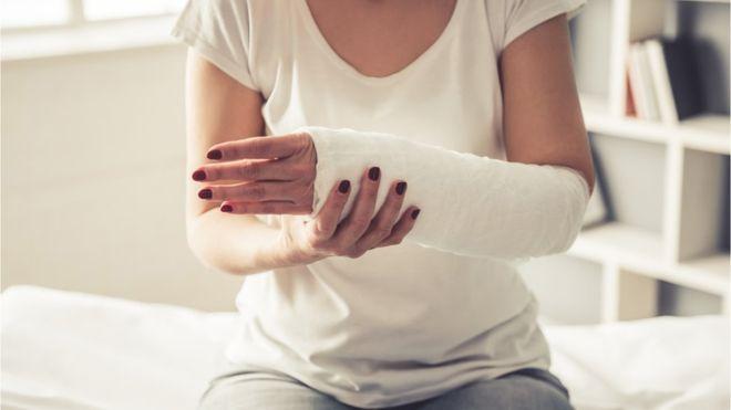 Ya puedes saber si eres propensa a las roturas de cadera